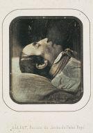 Death Portrait of Doctor Amussat