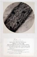 Microscopical Photographs