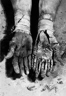 Die Befreiung der Finger