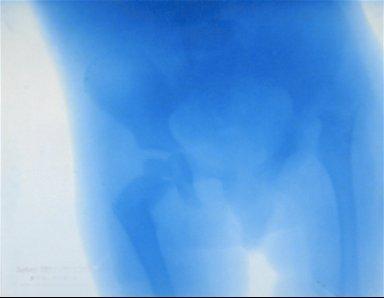 X-ray of Pelvis
