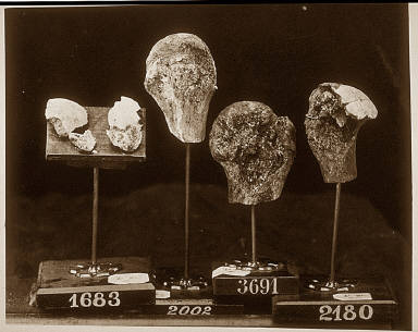 Heads and Fragments of Heads of Humeri, from the Photographic Catalogue of the SurgicalSection