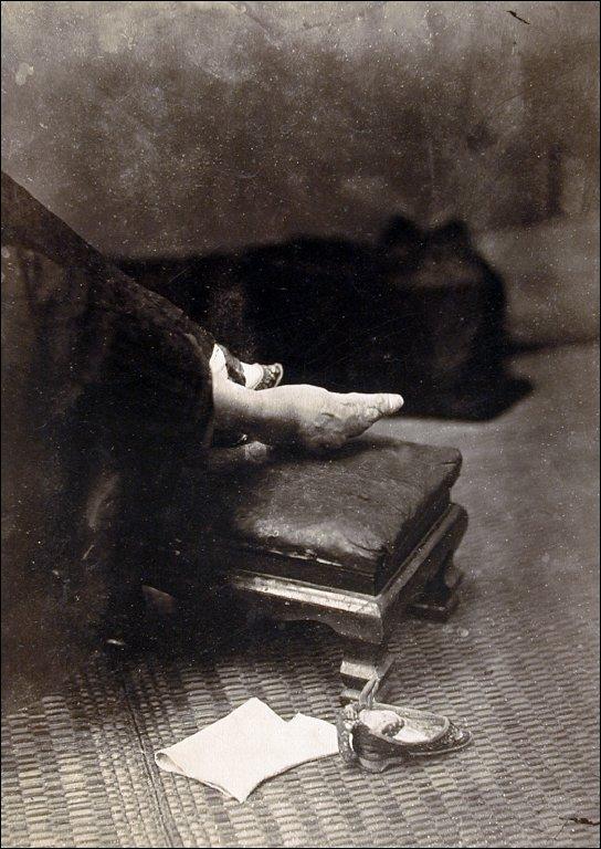 Untitled (Unbound Foot)