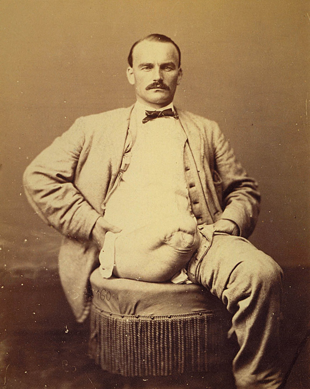Private Charles Meyer, Amputation of the Right Thigh, from the Photographic Catalogue of the SurgicalSection