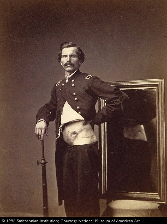 Major H. A. Barnum, Recovery after a Penetrating Gunshot Wound of the Abdomen with Perforation of theLeft Ilium, from the Photographic Catalogue of the Surgical Section